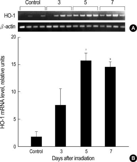 HO-1 mRNA expression levels in the liver of female C57BL/6 mice after whole-body irradiation with 10 Gy. ( A ) The purified total RNA was converted to cDNA and amplified by reverse transcriptase polymerase chain reaction (RT-PCR). The amplified RT-PCR product was visualized on 1% agarose gel. ( B ) The band density was quantified in comparison to the β-actin mRNA expression using image analyzer. Four mice were used in each test and control group. All data are shown as means±SEM. * p