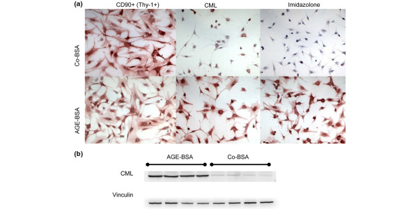 Characterisation of FLS and AGE uptake. (a) Immunohistochemical staining of fibroblast-like synovial cells (FLS) cultured from osteoarthritic synovial tissues. FLS were stimulated with control-BSA (Co-BSA) or advanced glycation end products-modified (AGE)-BSA (5 mg/ml) for 24 hours. FLS stained positive for the fibroblast marker CD90 and AGE-BSA incubation had no influence on CD90+ expression. The intensive intracellular staining for N ε -carboxymethyllysine (CML) and imidazolone in AGE-BSA treated cells in comparison with Co-BSA suggests active uptake of AGE. (b) Western blot for CML. FLS treated with AGE-BSA expressed more CML protein than cells incubated with Co-BSA.