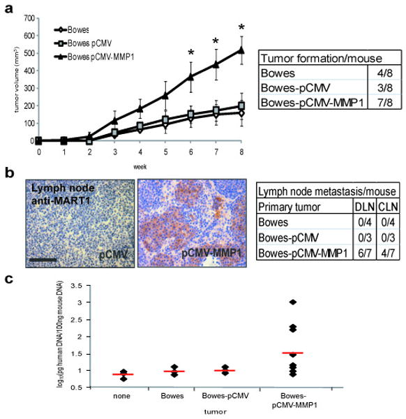 <t>MMP-1</t> expression in Bowes RGP cells promotes tumor growth and metastasis. ( a ) Bowes, Bowes-pCMV and Bowes-pCMV-MMP1 cells were injected intradermally into nude mice (10 6 cells/injection). Tumor incidence was noted (table) and tumors were measured weekly with calipers. * p