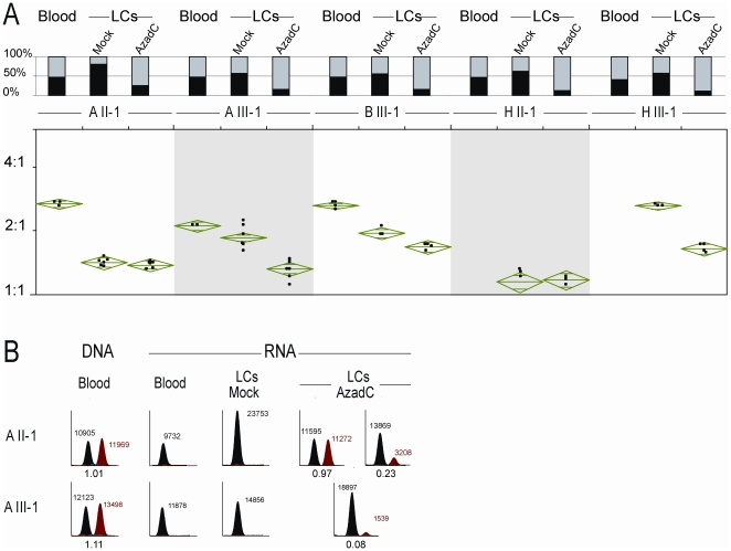 Treatment of lymphoblastoid cells (LCs) with the demethylation drug 5-aza-2′-deoxycytidine (AzadC). (A) Methylation analysis of CpG 85 by methylation-specific PCR (MS-PCR) and quantification of allelic expression imbalance of the RB1 gene. The top chart shows the methylation status of CpG 85 in blood, mock-treated and AzadC-treated LCs. The percentage of MS-PCR products specific for methylated and unmethylated alleles is indicated by black and grey bars, respectively. The bottom plot shows the ratio of allelic expression as determined by SNaPshot primer extension on RT–PCR products obtained from RNA. For each sample 3–8 independent experiments were performed. The top and bottom of the means diamonds represent the 95% confidence interval for the means. In family H, we could not investigate allelic RB1 expression in blood, because we did not have RNA from fresh blood. In this family, a male patient with unilateral retinoblastoma (HII-1) inherited the rare variant from his unaffected mother and transmitted it to his unaffected daughter (HIII-1). (B) Electropherograms of SNaPshot primer extension on RT–PCR products specific for the 2B-transcript. Black and red peaks correspond to C and T alleles, respectively. In A III-1, the C allele is known to be of paternal origin. Numbers next to peaks indicate peak areas. Numbers below electropherograms with two peaks show the ratios of peak areas (T-allele/C-allele).