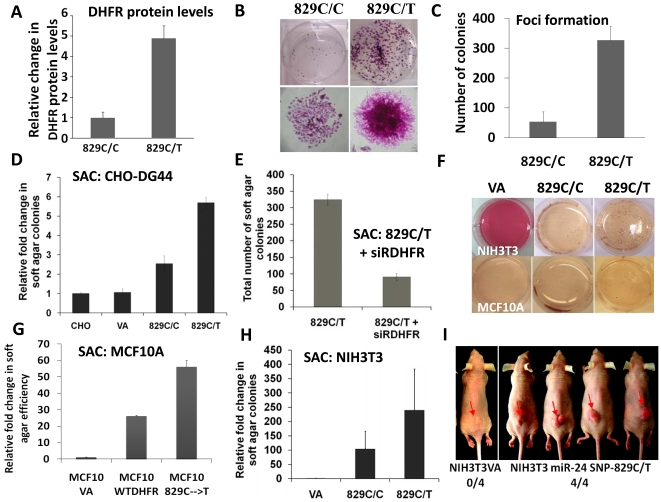 A loss-of-function miR-24 target site SNP contributes to cellular transformation. (A) The miR-24-TS-SNP (829C→T) expressing CHO-DG44 cells over-expressed DHFR [22] . (B–C) DHFR over expression in CHO-DG44 cells due a loss of miR-24 function results in an increase in colony forming ability and (D) show anchorage-independent growth in semi solid agar as compared to vector alone expressing cells (p-value > 0.05) (Soft agar colony-forming assay is abbreviated as SAC). (E) Transfection of a siRNA specific to DHFR reduced the ability of miR-24-TS-SNP expressing cells to form soft agar colonies by threefold. (F-H) miR-24-TS-SNP expression in a human cell line - MCF10A (G) and two rodent cell lines - NIH3T3 (H) and RK3 (see Table S1 ) resulted in more soft agar colony formation as compared to the cells expressing the vector alone and DHFR with wt 3′UTR. (I) DHFR overexpression due to the miR-24-TS-SNP renders NIH3T3 cells tumorigenic when transplanted in nude mice.