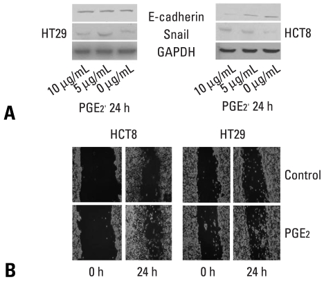 Effects of PGE 2 on the expressions of E-cadherin and Snail, and cell mobility in HCT8 and HT29. (A) Western blot analyses for E-cadherin and Snail in the presence of PGE 2 at the indicated doses for 24 hours. Forty µg of protein was separated by 10% SDS-polyacrylamide gel electrophoresis and transferred to a nitrocellulose membrane. The bottom represents GAPDH, which was used as a loading control. (B) Cells were incubated with serum-free medium including with PGE 2 (5 µg/mL) and allowed to migrate into the wound area for up to 24 hours at 37℃. Images were acquired immediately, and at 24 hours after wounding. PGE 2 (5 µg/mL) treatment increased cell mobility in HCT8 and HT29. GAPDH, glyceraldehydes 3-phosphate dehydrogenase; PGE 2 , prostaglandin E 2 . SDS, sodium dodecyl sulfate.