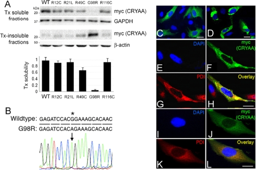 G98R αA-crystallin was TritonX-100-insoluble and formed aggregates inside cells.  A : Triton X-100 (Tx) solubility assay of wild-type (WT) and cataract-causing mutant CRYAA in B3 cells by western blotting of myc (detecting CRYAA), housekeeping GAPDH, and β-actin. The band densitometry analysis showed the drastic reduction of Tx solubility of G98R CRYAA when compared to WT or other mutants.  B : Direct sequencing of pHis/myc-CRYAA G98R  to indicate the base change at c.292G > A.  C – L : Confocal double immunofluorescence of WT and G98R CRYAA in B3 cells.  C  and  D : A lower magnification to show the expression of WT ( C ) and G98R CRYAA ( D ) in cells.  E – H : G98R CRYAA (myc staining in  F ) formed intracellular aggregates and was intensely co-distributed with PDI ( G ) in the overlay image ( H ).  I – L : WT CRYAA ( J , myc staining) was diffusely distributed in cytoplasm and had only mild co-distribution with PDI ( K ) in overlay image ( L ). Nuclei were stained with DAPI (blue,  E  and  I ). Scale bars: 10 μm ( C – L ). PDI: protein disulphide isomerase; DAPI: 4'-6-diamidino-2-phenylindole.