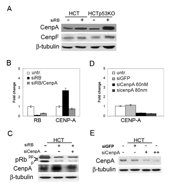 Reduction of CENPA overexpression by RNAi in pRb depleted cells . A) Western blot showing CENP-A and CENP-F protein levels in HCT116 cells, wild type (HCT, lane 1), p53-knockout (HCTp53KO, lane 3) and after pRb acute loss (siRB+, lanes 2 and 4), <t>β-tubulin</t> was used as a loading control. B) Real-time RT-PCR showed CENPA decreased transcript levels after simultaneous RB/CENPA post-transcriptional silencing (siRB/CenpA), in comparison to CENPA expression in RB-depleted cells (siRB). RB transcripts were reduced in both pRb- and pRb/CenpA- depleted cells. Untransfected HCT116 cells were used as a calibrator. C) Western blot showing reduction of CENP-A protein levels, in comparison to CENPA expression in RB-depleted cells (siRB+), in cells simultaneously transfected with siRNAs specific for both RB and CENPA (lane 3). Protein extracts of HCT116 wild type and pRb-depleted cells were loaded in lanes 1 and 2 respectively. β-tubulin was used as a loading control. D) Real-time RT-PCR showing CENPA transcript levels in HCT116 cells transfected with a control siRNA targeting GFP (siGFP) and after transfection of siRNAs targeting CENPA (two different doses siCenpA 60 nM, siCenpA 80 nM). E) Western blot showing reduction of CENP-A protein levels after CenpA post-transcriptional silencing (lane 3: 60 nM, lane 4: 80 nM). Normal levels of CENPA were present in untransfected cells (lane 1) and in cells transfected with a control siRNA (lane 2: siGFP).