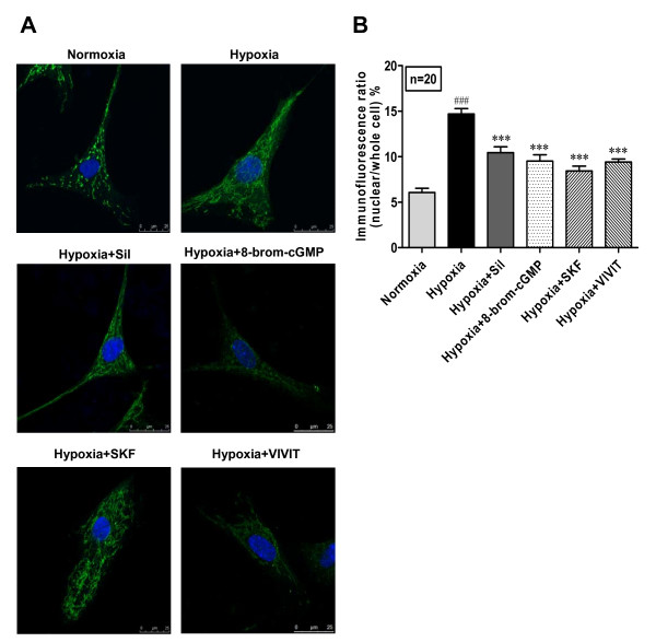Sildenafil inhibits hypoxia-induced nuclear translocation of NFATc3 in cultured human PASMC . Human PASMC were cultured with SMBM (2% FBS) under nomoxia or hypoxia (3% O 2 ) in the presence of sildenafil (100 nM), <t>8-brom-cGMP</t> (100 μM), SKF96365 (7.5 μM) or <t>VIVIT</t> (4 μM) respectively for 72 h. NFATc3 was determined by confocal microscopy of immunofluorescence. The primary antibody of NFATc3 was detected with Rhodamine (TRITC)-conjugated AffiniPure Goat Anti-mouse IgG (green). Slides were counterstained with nuclei dye hoechest33258 (blue). A: Immunofluorescence image of NFATc3 in human PASMC (×1000). B: The nuclear translocation of NFATc3 was calculated by comparing the ratio of nuclear NFATc3 immunofluorescence/total NFATc3 immunofluorescence. n = 20, ### P