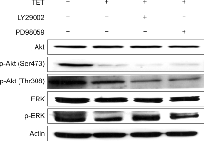 The effects of a PI3K/Akt inhibitor and an MEK/ERK inhibitor on tetrandrine (TET)-treated A549 cells. The cells were treated with TET (30 µM) for 24 h in the absence or presence of LY294002 (20 µM) or PD98059 (50 µM). Next, lysates were prepared and Western blot analysis was performed in order to determine protein expression levels.