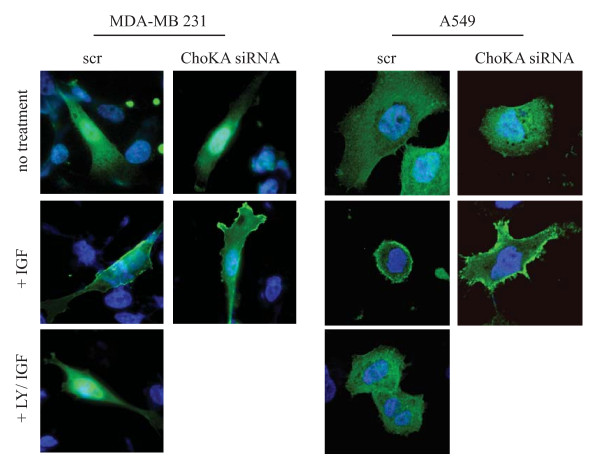 ChoKα regulation on Akt activity is PI3K independent . MDA-MB 231 and A549 cells were transfected with 50 nM of pool siRNA targeted to scr control or ChoK A. 2 days post transfection, cells were transfected with 0.5 μg PH-GFP construct for 24 h followed by 8 h serum starvation and 15 mins of IGF stimulation. 50 μM LY294002 was added to scr transfected cells for 30 mins prior to IGF stimulation. Cells were stained with Hoechst, fixed with paraformaldehyde and mounted for fluorescence microscopy.