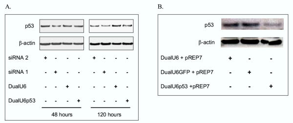 Suppression of p53 protein levels using a convergent U6 expression vector. (A) Transient suppression of p53 protein levels. Plasmids DualU6 and DualU6p53 or p53-specific siRNAs 1 and 2 were transfected into MDA MB 231 cells and, at 48 h and 120 h post-transfection, p53 and β-actin protein levels were determined using Western analysis. ( B ) Long term suppression of p53 protein levels. EcR293 cells containing a stably integrated dEGFP transgene were co-transfected with DualU6, DualU6GFP or DualU6p53 and pREP7. Following selection in hygromycin, cell populations were analysed for p53 and β-actin protein levels.