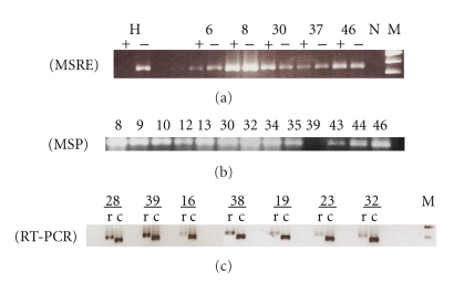 Analysis of T β R - I promoter status and gene function in HNSCCs. (a) Representative examples of restriction enzyme-mediated PCR (MSRE) experiments. Analyses were performed for each tumor in the presence (+) and in the absence (−) of Bst UI as described in Materials and Methods. Presence of PCR products in (+) lanes indicates methylated DNA. Methylation of T β R - I was detected for carcinomas 6, 8, 30, 37, and 46. A positive control of peripheral blood lymphocytes DNA (H) shows unmethylated DNA. A negative (N) control without DNA was used in each assay. M: molecular size marker 100 bp. (b) Methylation-specific PCR for bisulfite-modified DNA that was amplified with primers specific for methylated alleles, as described in Materials and Methods. The presence of PCR products (Lanes 1 to 9 and 11 to 12) is indicative of a methylated T β R - I gene promoter. Lane 10 (HNSCC no. 39) shows an unmethylated DNA. (c) Semiquantitative RT-PCR analysis of T β R - I gene expression in representative samples of HNSCCs. Expression of ACTB gene was used as a control for RNA integrity. Relative mRNA level was normalized based on that of β -actin (153 bp). The length of the T β R - I PCR product is 186 bp. The agarose gel image was taken from a 30-cycle PCR. T β R - I (a) and ACTB (b) PCR products were visualized after electrophoresis through 2.5% agarose. HNSCC samples 28, 16, 38, 19, 23, 32 have lost or show reduced mRNA expression. HNSCC sample 39 had preserved mRNA expression. M: molecular size marker 50 bp.