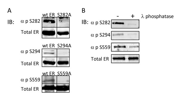 Confirmation of the specificity of ER phospho-antibodies . (A) Serine to alanine mutations at ERα phosphorylation sites inhibit reactivity of phospho-specific antibodies. COS-1 cells cultured in DMEM growth supplemented with 10% FBS were transiently transfected with 500 ng of either wt ERα or serine to alanine substituted ERα expression plasmids (S47A, S282A, S294A, or S559A). 18 hours post-transfection, cells were lysed and subjected to Western immunoblot analysis utilizing custom polyclonal antibodies directed toward the individual phosphorylated ERα residues (S47, S282, S294, or S559) or monoclonal ERα antibody as indicated. α-p-S282, α-p-S294, or α-p-S559 antibodies did not recognize S282A, S294A, or S559A, respectively, indicating phospho-antibody specificity. Mutation of S47 failed to eliminate immunoreactivity of αp-S47. (B) In vitro λ phosphatase treatment of ERα inhibits immunoreactivity of ERα phospho-antibodies. Baculovirus expressed ERα was subjected to dephosphorylation by λ phosphatase for 30 minutes at 30°C and analyzed by Western immunoblot with antibodies against p-S282, p-S294, p-S559, and total ERα. Dephosphorylation inhibited immunoreactivity of, α-p-S282, α-p-S294, and α-p-S559 without impacting immunoreactivity of total ERα antibody.