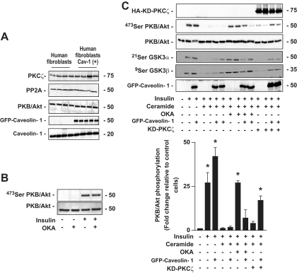 Effect of ceramide on insulin-induced phosphorylation of PKB/Akt in control human fibroblast versus caveolin-1–overexpressing human fibroblast. A : Control human fibroblast and caveolin-1–overexpressing human fibroblast lysates were immunoblotted with antibodies against either PKCζ, PP2A, native PKB/Akt, GFP, or caveolin-1. B : Human fibroblasts were treated with 500 μmol/l OKA for 30 min and 100 nmol/l insulin for the last 10 min before being lysed. Cell lysates were immunoblotted with antibodies against either native PKB/Akt or Ser473 PKB/Akt. C : Control human fibroblast and caveolin-1–overexpressing human fibroblast were preincubated with 100 μmol/l C2-ceramide for 2 h, followed by 500 μmol/l OKA for the last 30 min. Then, 100 nmol/l insulin was added to the cells for 10 min before being lysed. Cell lysates were immunoblotted with antibodies against native PKB/Akt, Ser473 PKB/Akt, Ser21/9 GSK3α/β, PKCζ, and GFP. Scanning densitometry was performed to quantify changes in Ser473 PKB/Akt abundance in cell lysates. Bars represent mean ± SEM. *Significant change, P