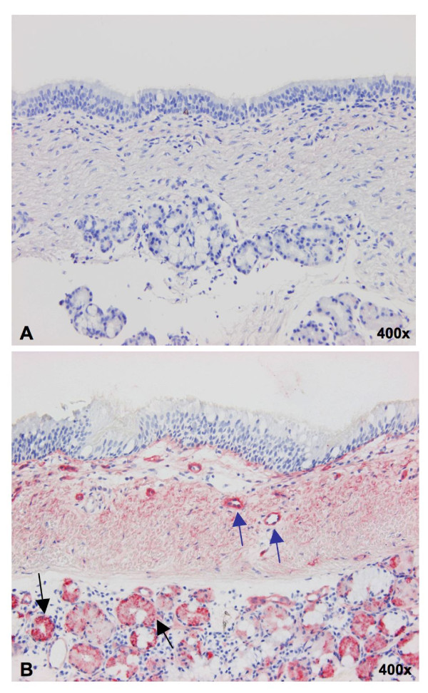 Comparison of binding with digoxigenin-conjugated MAA in paraffin sections (A) and cryosections (B) of the porcine trachea . Only the cryosections showed clear positivity in the glands (black arrows) and the small blood vessels (blue arrows), while paraffin sections were completely negative.