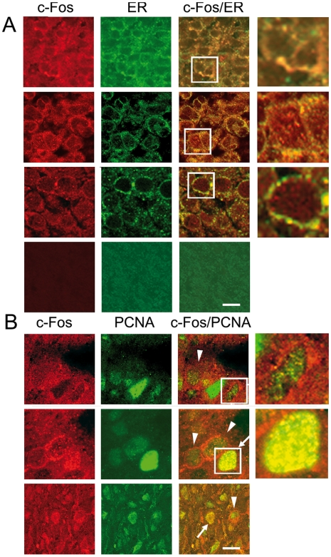 Human brain tumors show abundant c-Fos expression co-localizing with the ER marker calnexin. ( A ) Expression of c-Fos, the ER marker calnexin, and the nuclear marker of proliferating cells PCNA in human brain tumor specimens (n = 156) and non-pathological samples (n = 17). Representative samples of astrocytoma (1st row), GM (2nd row), medulloblastoma (3rd row) and human brain non-pathological samples (4th row) from a tissue array immunostained for c-Fos (red) and calnexin (green); 3rd column is the merge of the previous two columns. Yellow color evidences c-Fos/ER co-localization sites. ( B ) Immunostaining for c-Fos (red), PCNA (green) and the merged image of both is shown for an astrocytoma (1st row), a GM (2nd row) and a medulloblastoma (3rd row). Arrows: proliferating cells with nuclear c-Fos; arrowheads: cells showing predominantly peri-nuclear c-Fos. Bar: 20 µm. Fourth column in A and B is a 20× magnification of the boxed area in the 3rd column.