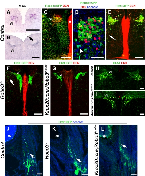 Normal projection of abducens motor axons in Robo3-deficient mice. (A to I) show coronal hindbrain sections at the level of the abducens nucleus. (A and B) Robo3 transcripts are detected in the abducens nuclei of E12 (A) and E14 (B) embryos. The arrow in (B) points to the facial nerve. (C) abducens neurons coexpress BEN and GFP in Robo3 +/− E14 embryo. The floor plate (asterisk) also expresses BEN. (D) Hb9/GFP double labeling in E15 Robo3 +/− embryo. Note that some GFP+ cells (arrowhead) do not express Hb9. (E) abducens neurons (VI) and axons (arrow) express GFP in E14 Hb9::GFP transgenic embryo. (F–I) The abducens nucleus has an abnormal shape and is closer to the floor plate in Robo3 −/− (F) and Krox20::cre;Robo3 lox/lox (G) E14 embryos (compare with [E]). The arrow in (F) points to abducens axons. (H and I) This abnormal shape and position are also observed in adult animals with ChAT/Hb9 double immunostaining. (J to L) Coronal sections of P0 mouse head at eye cup (ec) level. GFP-positive abducens axons (arrows) still contact the lateral rectus muscle in Robo3 -null embryo (K) and Krox20::cre;Robo3 lox/lox mutant (L). Scale bars represent 100 µm, except in (D), where it indicates 50 µm.