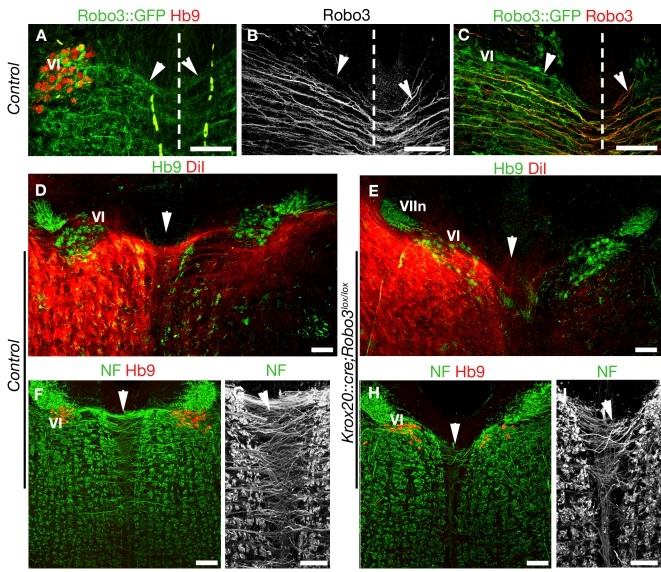 Reduced internuclear commissure in Robo3 knockout mice. (A to I) show coronal hindbrain sections at the level of the abducens nucleus, visualized by Hb9 immunostaining (in A, D, E, F, and H). (A, B, and C) illustrate the projection of abducens axons (arrowheads) across the midline (dashed line) in Robo3 +/− E13 embryos. Some GFP+ axons originate from the abducens nucleus (VI) and are immunoreactive for Robo3 (B and C). (D) The internuclear commissure (arrowhead) is also observed in P0 controls, following DiI injection at the level of the oculomotor nucleus III. (E) This commissure is almost completely absent in P0 Krox20::cre;Robo3 lox/lox mice (arrowhead). (VIIn): Genu of facial nerve. (F to I) At E15, many neurofilament+ axons cross the midline at the VI level (arrowheads) in control embryo (F and G), whereas they are rare in Krox20::cre;Robo3 lox/lox embryo (H and I). Scale bars represent 100 µm, except in (G and I), where they indicate 50 µm.