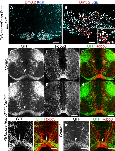 Analysis of Ptf1a::cre;Robo3 lox/lox ;Tau mGFP mice. (A and B) Coronal sections of the hindbrain at the level of inferior olive of E16 Ptf1a::cre;Tau mGFP embryo labeled with anti-βgal and Brn3.2 antibodies. Some Brn3.2-positive neurons in the inferior olive do not express the βgal (arrowheads and inset). (C–L) Coronal sections of the spinal cord at the level of the forelimbs in E13 Ptf1a::cre;Robo3 lox/+ ;Tau mGFP (C–E, K, and L) or Ptf1a::cre;Robo3 lox/lox ;Tau mGFP (F–H, I, and J) embryos labeled with anti-GFP and anti-Robo3 antibodies. Most GFP-positive axons are in the dorsal spinal cord, and only a small subset of GFP-positive axons (short arrows) cross the floor plate in Ptf1a::cre;Robo3 lox/+ ;Tau mGFP (C and K) but do not express Robo3 (E and L). This subset of GFP-positive commissural axons is still observed in Ptf1a::cre;Robo3 lox/lox ;Tau mGFP embryos (F and J). Scale bars represent 100 µm except in (B and I–L), where they indicate 50 µm.