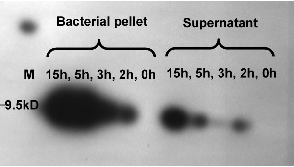 Recombinant gallin identified by western blotting performed using a SuperSignal ® West HisProbe™ Kit (Pierce, Rockford IL and visualised with Luminol/Enhancer solution with stable Peroxide Solution (Thermo, USA) . The membrane was exposed to X-ray film for 30 seconds. The lanes show the signal from samples derived from either the supernatant or the bacterial pellet after induction by 1 mM IPTG for 0, 2, 3 5 or 15 hours. Molecular weight was determined by interpolation from a Spectra™ Multicolor Broad Range Protein Ladder (Fermentas) run in lane M.