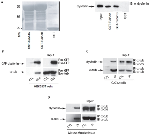 Dysferlin complexes with alpha-tubulin. A. GST, GST-TubA4A and GST-TubA1B fusion proteins immobilized onto glutathione-Sepharose 4B beads were incubated with mouse skeletal muscle homogenate. GST, GST-TubA4A or GST-TubA1B with adsorbed proteins from mouse skeletal muscle were resolved by SDS-PAGE, transferred onto a nitrocellulose membrane, and blotted with mouse monoclonal anti-dysferlin antibody. Left panel: nitrocellulose membrane stained with ponceau red, right panel: detection of immunoreactive dysferlin. B. GFP-dysferlin was overexpressed in HEK293T cells and then immunoprecipitated from cell extracts with anti-GFP antibody. As a control, protein A-Sepharose beads coated with anti-GFP antibody were incubated with extracts of non-transfected HEK293T cells. Proteins were separated on SDS-PAGE gel and were transferred onto a nitrocellulose membrane and blotted with anti-GFP or anti-alpha-tubulin antibodies. Input (right panel), immunoprecipitate (left panel). C–D. Co-immunoprecipitation of dysferlin with anti-alpha-tubulin antibody from C2C12 myotube extracts ( C ) or mouse skeletal muscle homogenate ( D ). Input (right panel), immunoprecipitate (left panel). As a control (CTL), protein A-Sepharose beads were incubated with myotube extracts in the absence of anti-alpha-tubulin antibody.