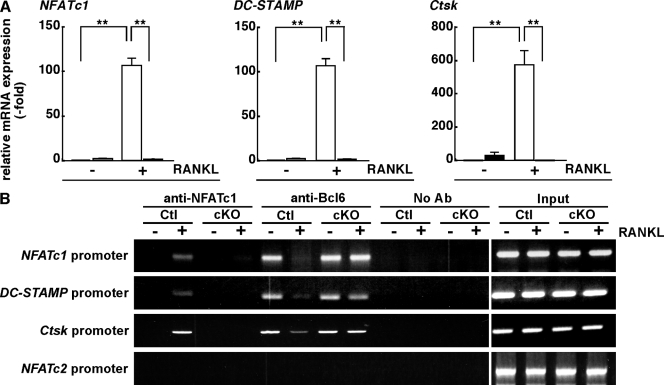Bcl6 suppresses osteoclast differentiation. (A) Total RNA was prepared from control (white bars) or Blimp1 cKO (shaded bars) cells treated with (+) or without (−) RANKL, and the expression of the osteoclastic genes NFATc1 , DC-STAMP , and Ctsk relative to β-actin was analyzed by a quantitative real-time PCR. Data are means ± SD of osteoclastic genes / β-actin . (**, P