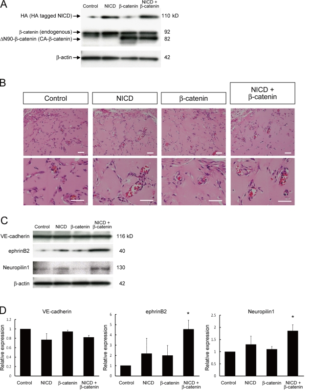 Enhancement of arterial gene expression through dual activation of Notch and β-catenin during in vivo angiogenesis. Matrigel containing VEGF (100 ng/ml), heparin (10 units/ml), and adenoviral vectors (vehicle [control], HA-tagged N1ICD [NICD], and/or CA-β-catenin) were injected subcutaneously in mice. After 7 d, the mice were sacrificed and plugs were excised. (A) Western blot for HA-tagged N1ICD and CA-β-catenin in recovered cells from Matrigel plugs. (B) Hematoxylin and eosin staining of Matrigel sections. Overall appearances were not different. Invasion of blood vessels with vascular lumen and blood cells were observed. Bars: 200 µm. (C) Representative result of Western blot for VE-cadherin, ephrinB2, and Neuropilin1 in recovered cells from Matrigel plugs. (D) Quantitative evaluation of VE-cadherin (left graph), ephrinB2 (middle graph), and Neuropilin1 (right graph) protein expression in Matrigels. Relative expression normalized with β-actin expression is shown. ( n = 3; *, P