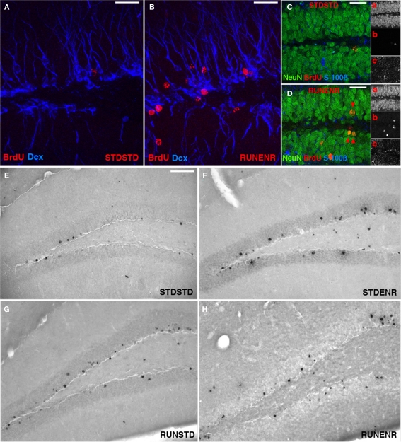 Activity-induced changes in the number of <t>BrdU-labeled</t> cells and new neurons in the dentate gyrus . (A,B) Confocal projections of the dentate gyrus (z-stack of 10 optical sections with 1.7-μm thickness). BrdU, Red; DCX, Blue. Scale bar, 25 μm in (A–D) Confocal image (optical section of 1-μm thickness) of STDSTD in (C) and RUNENR in (D) showing <t>NeuN,</t> Green; BrdU, Red, S100β, Blue; Inset: a, NeuN; b, BrdU; c, S100β. (D) Arrowheads in red indicating colocalization of BrdU and NeuN. Scale bar, 25 μm in (C,D) . (E–H) Brightfield images of BrdU-positive cells in the dentate gyrus. Scale bar (in E for E–H ), 100 μm.