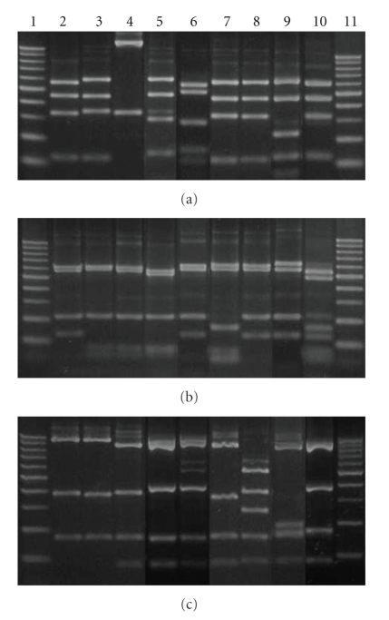 Agarose gel with different groups of restriction. Line 1 and 11, MW ladder (100 bp); line 2, ARDRA group 1 ( L. plantarum ); line 3, ARDRA group 2 ( P. acidilactici ); line 4, ARDRA group 3 ( W. paramesenteroides ); line 5, ARDRA group 4 ( L. salivarius ); line 6, ARDRA group 5 ( L. ruminis ); line 7, ARDRA group 6 ( L. curvatus ); line 8, ARDRA group 7 ( L. farciminis ); line 9, ARDRA group 8 ( L. mucosae ); line 10, ARDRA group 9 ( E. hirae ). Restriction fragments obtained with each enzyme: (a) Hae III, (b) Msp I, (c) Hinf I.