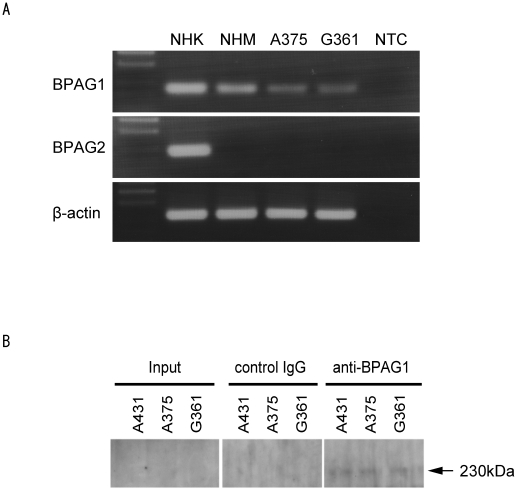 Expression of BPAG1 in normal human melanocytes and human melanoma cell lines. (A) The expression of BPAG1 and BPAG2 mRNA was quantified by RT-PCR in normal human melanocytes (NHM) and human melanoma cell lines A375 and G361. Normal human keratinocyte (NHK) mRNA was used as a positive control. β-actin was amplified as a loading control for cDNA. NTC; no template control. (B) The expression of BPAG1 protein was detected by IP-western blotting in human melanoma cell lines A375 and G361. A431 was used as positive control for BPAG1. The arrow indicates BPAG1.