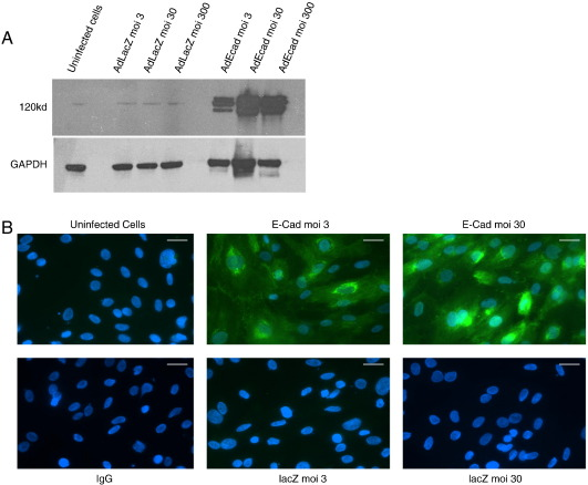 Adenovirus mediated in vitro overexpression of E-cadherin. Isolated single adult rabbit cells or H9c2 cells were infected with either Ad:E-cadherin or Ad: LacZ . (A) Western blot from extracts of H9c2 cells infected with E-cadherin showing increasing levels of E-cadherin from differing multiplicities of infection and the GAPDH loading control (B) Immunocytochemical levels of E-cadherin in H9c2 cells infected with either Ad:E-cadherin or Ad: LacZ . Successful infection of E-cadherin into the H9c2 cell-line can be observed at low and high levels of infection (scale = 25 µm).