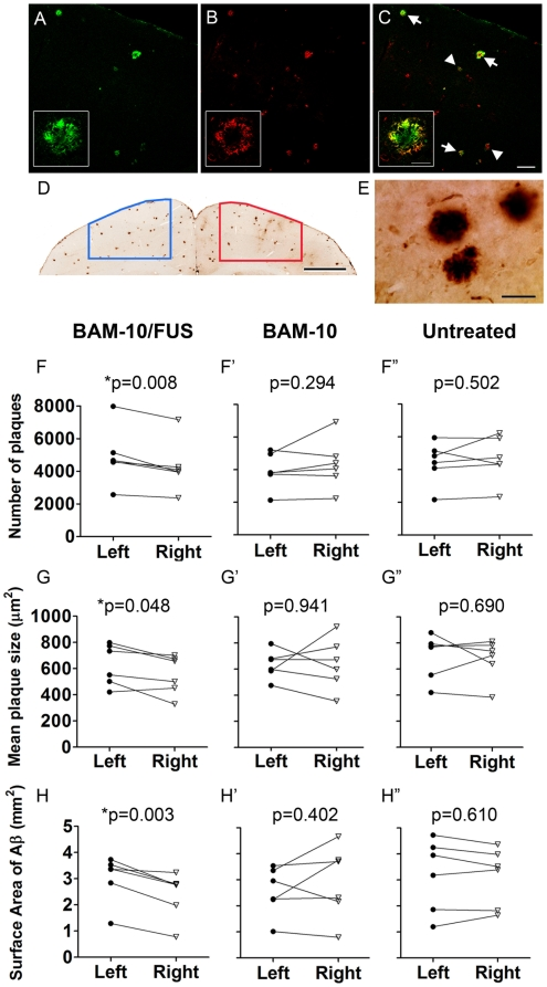 Focused ultrasound delivery of BAM-10 to the brain reduces Aβ plaque pathology in TgCRND8 mice. Coronal sections were stained with <t>streptavadin-Cy2</t> for ( A ) biotinylated BAM-10 and ( B ) anti-Aβ antibody 6F3D for plaques to demonstrate that 6F3D binds to plaques which are strongly (arrows) and weakly (arrowheads) positive for BAM-10 ( C ). Once it was confirmed that BAM-10 does not interfere with 6F3D plaque detection, sections for mice in each treatment group were stained with 6F3D and the stereology software was used to draw contours outlining the FUS-targeted region (determined from MRI post-treatment scans) on the right side of the brain and an equivalent region on the contralateral side ( D ). Plaques were counted and measured at high magnification ( E ), using stereological methods. In 4 days, the mean ( F ) count, ( G ) size and ( H ) surface area of Aβ plaques on the right, MRIgFUS-targeted side of the brain was consistently reduced in comparison to the left side of the brain only for the BAM-10/FUS-treated mice ( F–H ; n = 6, paired t-tests, p = 0.008, p = 0.048 and p = 0.003, respectively). This difference is unique to BAM-10/FUS treatment as there was no significant difference between right and left side of the brain in mice from other treatment groups ( F′–H′ : BAM-10 treated group, n = 6, paired t-tests, p = 0.294, p = 0.941 and p = 0.402; F″–H″ : Untreated group, n = 6, paired t-tests, p = 0.502, p = 0.690, p = 0.610). Scale bars: A–C = 100 µm (inset = 20 µm); D = 1 mm; E = 50 µm.