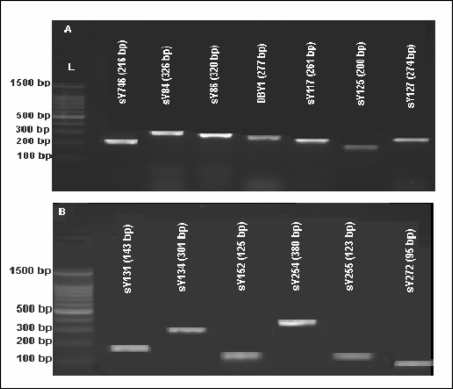 Representative ethidium bromide-stained agarose gels for detection of classic (full) AZF microdeletions (case #83). The STSs and the PCR product sizes are indicated above each band. L: 100 bp DNA Ladder.