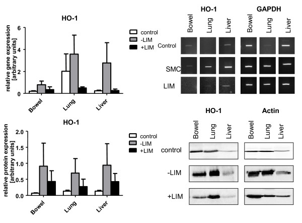 Heme oxygenase-1 (HO-1) gene expression (A), and HO-1 protein expression (B) in control (white bars), SMC (grey bars), and LIM (black bars) animals .