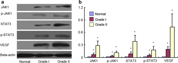 Western blot analysis of protein expression of JAK1, p-JAK1, STAT3, p-STAT3, and VEGF. a Protein level of JAK1, p-JAK1, STAT3, p-STAT3, and VEGF in normal dura and tumor tissue. Beta-actin was a loading control. b Relative protein expression of JAK1, p-JAK1, STAT3, p-STAT3, and VEGF normalized to that of Beta-actin. * P