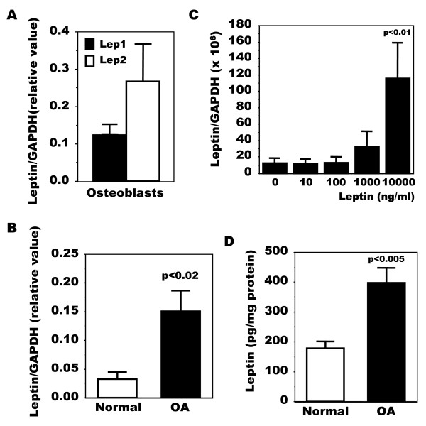 Production of leptin in normal and OA osteoblasts . The expression of leptin was first determined by qPCR. Confluent osteoblasts (Ob) were lized in TRIzol and RNA extracted as described in Material and methods. RNA (1 μg) was reversed transcribed followed by qPCR amplification of 100 ng cDNA using specific primers for leptin and GAPDH. The data were processed with the GeneAmp 5700 SDS software and given as threshold cycle (Ct), corresponding to the PCR cycle at which an increase in reporter fluorescence above baseline signal can first be detected. The Ct was converted to the number of molecules and the values for each sample calculated as the ratio of the number of molecules of the target gene/number of molecules of GAPDH. A ) Quantification of leptin mRNA using Lep1 and Lep2 primers. Results are given as the mean value of markers relative to GAPDH ± SEM of n = 4 OA preparations. B ) Quantification of leptin mRNA levels in normal and OA Ob using Lep1 primers. Results are the mean ± SEM of n = 5 normal and n = 15 OA individual Ob preparations. C ) OA Ob were exposed to increasing doses of leptin and lepin mRNA levels were determined using Lep1 primers. Results are the mean ± SEM of n = 4 preparations. The protein production of leptin was next detected using a very selective ELISA. Conditioned-media of confluent normal and OA Ob incubated in HAM's F12/DMEM media containing 0.5% FBS for their last 48 hours of culture were recuperated and stored at -80°C. D ) Aliquots were taken to measure leptin using a very sensitive ELISA. Results are the mean ± SEM of n = 5 normal and n = 6 OA individual Ob preparations.