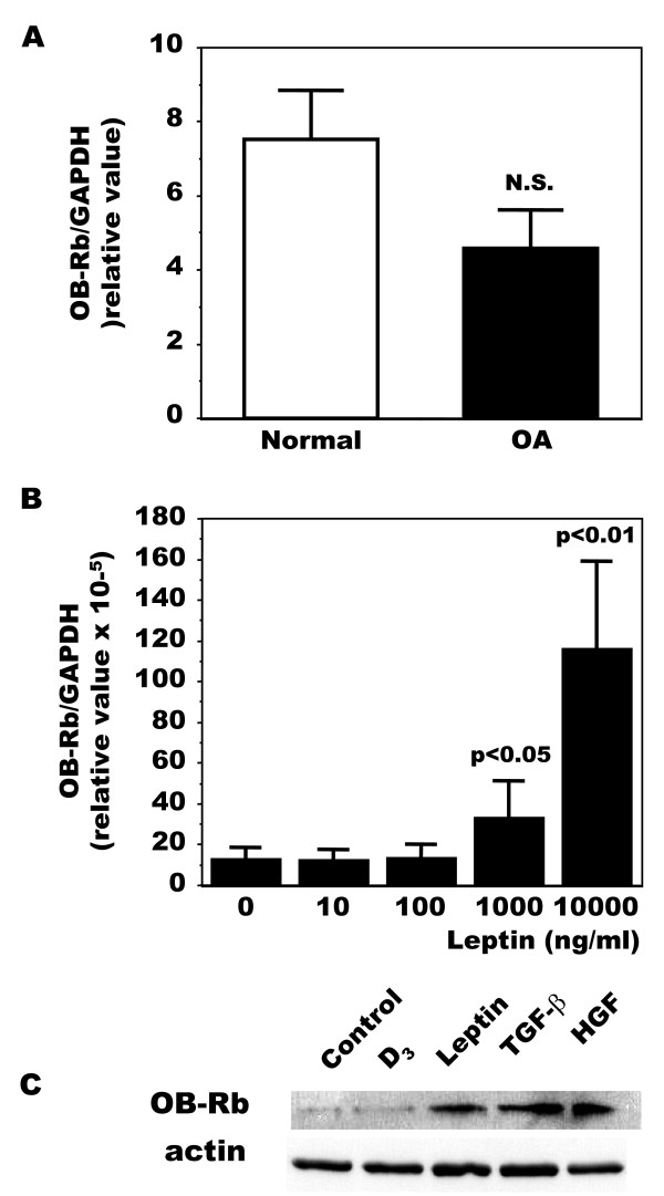 Production of leptin receptors (OB-Rb) in normal and OA osteoblasts . The expression of leptin receptors was first determined by qPCR. A ) Confluent Ob were lized in TRIzol and RNA extracted as described in Material and Methods. RNA was reversed transcribed followed by PCR amplification of 100 ng cDNA as described in Figure 1 using OB-Rb and GAPDH primers. Results are the mean ± SEM of n = 7 normal and n = 19 OA Ob preparations, P