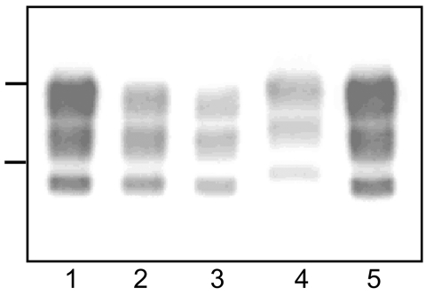 Western blot analyses of protease-resistant prion protein from proteinase K–treated brain homogenates from cattle transmissible spongiform encephalopathies (TSEs). Typical bovine spongiform encephalopathy (BSE) (lanes 1, 5), L-type BSE (lane 2), transmissible mink encephalopathy (TME) in cattle (lane 3), H-type BSE (lane 4). Bars to the left of the panel indicate the 29.0- and 20.1-kDa marker positions.