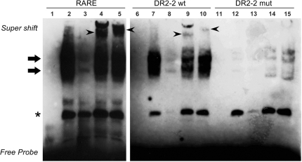 RARα and RXR interacts with the novel intronic RARE in gel retardation assays. Nuclear extracts from E2-treated MCF-7 cells were incubated with biotin labeled oligonucleotide probes representing a consensus RARE, the wild-type DR2-2 or the mutant variant DR2-2mut (DR2-2-Mut1-S in Supplementary Table S2 ). Samples were resolved on a 6% non-denaturing polyacrylamide gel in TBE, transferred to Hybond N+ membranes and then incubated with streptavidin, and biotin-labeled DNA probes were detected by chemiluminescence. The name of the probe used in each binding reaction is indicated on the top of each panel. All binding reactions were competed with 200-fold molar excess of the corresponding unlabeled probe. Arrows point out the nuclear receptor–DNA complexes, while arrowheads point out the super shift. The asterisk indicates a DR2-2 independent interaction with nuclear proteins. Labeled probes were incubated in the absence of nuclear extract (lanes 1, 6 and 11), in the presence of nuclear extract alone (lanes 2, 7 and 12), nuclear extract together with an excess of competing unlabeled probe (lanes 3, 8 and 13), in the presence of RARα antibodies (lanes 4, 9 and 14), or in the presence of RXR antibodies (lanes 5, 10 and 15). Experiments were repeated at least three times and a representative result is shown.