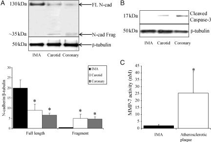 N-cadherin, MMP-7, and apoptosis in human IMA and atherosclerotic plaques. Representative western blot for N-cadherin ( A ) and cleaved caspase-3 ( B ) in IMA and coronary and carotid atherosclerotic plaques, n = 3 per group. β-Tubulin is shown as loading control. Bar chart in ( A ) shows densitometric analysis of N-cadherin western blots. ( C ) MMP activity in IMA and atherosclerotic plaques, n = 15 and 20. * indicates a significant difference from IMA.