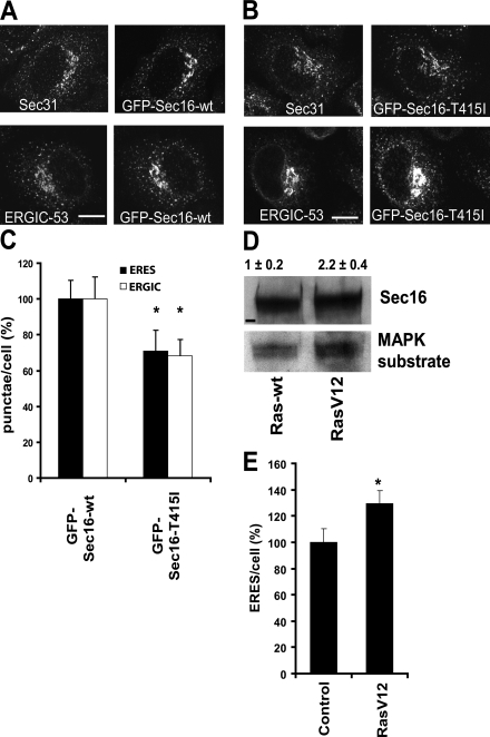 Phosphorylation of Sec16 is linked to ERES number. (A–C) Hells cells were transfected with cDNA encoding wild-type GFP-Sec16 (GFP–Sec16-wt; A) or GFP–Sec16-T415I (B), fixed 24 h later, and immunostained for Sec31 to label ERESs or <t>ERGIC-53</t> to label the ERGIC. (C) The number of ERESs and peripheral ERGIC punctae was counted. The bar graph represents the number of punctae positive for Sec31 (ERES) or ERGIC-53 (ERGIC). The values determined in cells expressing GFP–Sec16-wt were set to 100% (means ± SD; three independent experiments; asterisks indicate statistically significant difference to GFP–Sec16-wt; *, P