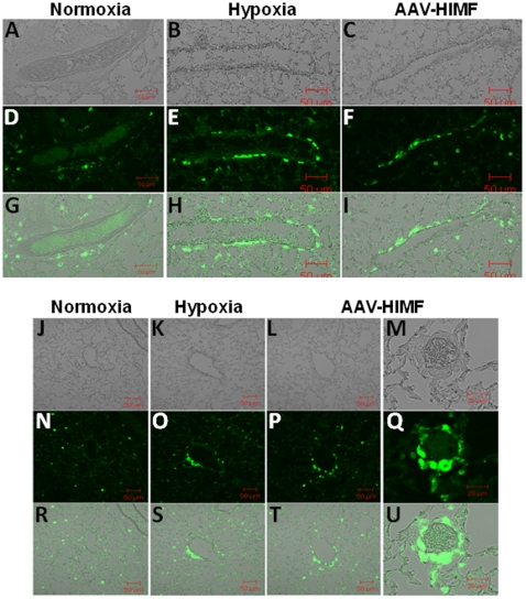 Both chronic hypoxia and pulmonary HIMF gene transfer recruit BMD cells to the pulmonary vasculature. (A–C, J–M) Light micrograph of fluorescence images to show blood vessel structure. Frozen sections from normoxic (20.8% O 2 ) (D, N), hypoxic (10.0% O 2 ) (E, O), and AAV-HIMF treated (2.5×10 10 VP) (F, P, Q) lungs were stained with a rabbit anti-GFP polyclonal antibody that was visualized by an FITC-conjugated goat anti-rabbit IgG antibody (green). (G–I, R–U): Differential interference contrast images of light and fluorescence images to show structure. A–L, N–P, R–T: Scale bar: 50µm. M, Q, U: Scale bar: 20µm.