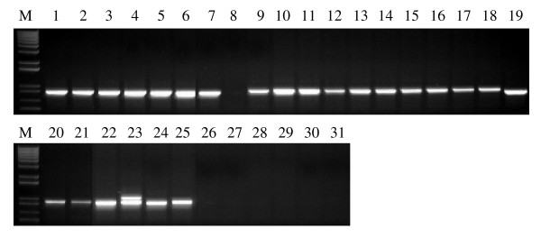 PCR amplification of 18 diploid ( Triticum and Aegilops species) and 13 tetraploid (wild and domesticated forms) progenitors of hexaploid wheat using the primer set SSII-7B-F2/SSII-7B-R2 . M = 1 kb plus DNA ladder. Lanes 1-2, T. monococcum accessions; lanes 3-5, T. boeoticum accessions; lanes 6-8, T. urartu accessions; lanes 9-13, T. turgidum ssp. durum accessions; lanes 14-18, T. turgidum ssp. dicoccon accessions; lanes 19-21, T. turgidum ssp. dicoccoides accessions; lanes 22-25, Ae. speltoides accessions; lanes 26-31, Ae. tauschii accessions.