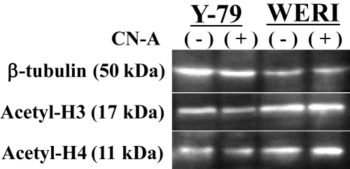 The accumulation of acetylated histone H3 and H4 protein in retinoblastoma cell lines. Western blot analysis of acetylated histone H3 and H4 (acetyl-H3 and H4) protein levels in retinoblastoma cells treated with (+) or without (–) cotylenin A (CN-A) for 5 days. β-Actin was used as a loading control.