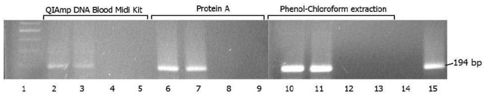 Recovery of PCR product in DNA samples isolated from serum specimens using QIAamp DNA blood midi kit, protein A and phenol-chloroform extraction method. 1 - molecular size standards; 2, 6 and 10 - PCR-positive serum from patient M; 3, 7 and 11 - PCR-positive serum from patient P; 4, 8 and 12 - PCR negative serum from patient S; 5, 9 and 13 - extraction control; 14 - negative control; 15 - positive control.