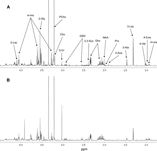 1 H NMR spectra from MyL and MyL-R cells extracts. MyL ( a ) and MyL-R ( b ) cells were expanded and maintained in T175 flasks containing RPMI culture medium with 10% FBS in the absence of imatinib. The expanded cells were collected by low speed centrifugation, counted and then plated at a density 5.0 × 10 6 cells/ml in 20 ml of fresh medium. After incubation for 2 h at 37°C, the cells were collected, washed three times with cold PBS, and extracted as described in Sect. 2 . Cell extracts were evaporated to dryness followed by suspension in D 2 O containing TSP (internal standard), and analyzed by 1 H NMR. Spectra are representative for each cell type and highlight major metabolites identified. Lac lactate, m-Ins myo-inositol, Gly glycine, Glm glutamine, PCho phosphocholine, Cho choline, Cr creatine, GSH glutathione, Suc succinate, Pro proline, Ace acetate, Ala alanine, Val valine, Ileu isoleucine, Leu leucine, NAA n -acetylaspartate