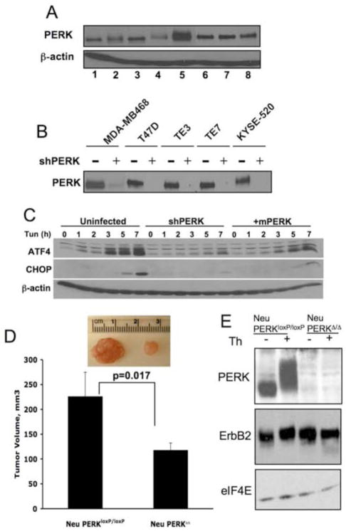 PERK expression is maintained in cancer cells wherein it regulates tumor expansion in vivo (A) PERK protein levels were measured by immunoprecipitation (IP) followed by Western blot analysis in the following cell lines: MCF10A (1), MCF7 (2), T47D (3), MDA-MB231 (4), MDA-MB468 (5), TE3 (6), TE7 (7), KYSE 520 (8). (B) PERK protein levels following shRNA targeting of PERK. (C) Parental MDA-MB468 cell line, shPERK-transduced cells (shPERK), and shPERK-transduced cells reconstituted with mouse Myc-PERK (+mPERK) were treated with 2μg/ml tunicamycin for the indicated intervals. Western analysis for ATF4, CHOP, or β-actin. (D) Volume of orthotopic tumors formed from the mouse mammary tumor-derived cells transduced in vitro with empty vector virus (Neu/PERK loxP/loxP ) or Cre-expressing retrovirus (Neu/PERK Δ/Δ ) 28 days post-transplant (n=4). Representative image of tumors are provided. All p-values determined by Student t-test. (E) Western analysis of transgenic ErbB2 and PERK expression following infection of mouse mammary tumor-derived cells with control (Neu/PERK loxP/loxP ) or Cre-expressing retrovirus (Neu/PERK Δ/Δ ). Thapsigargin treatment (50nM, 1h) was used to demonstrate that PERK is functional.