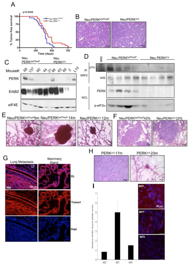 PERK loss attenuates MMTV- Neu -driven mammary tumorigenesis in mice, but promotes spontaneous mammary tumor formation in aged mammary gland-specific PERK knockout mice (A) Kaplan-Meier analysis of tumor-free survival for cohorts of MMTV-Neu/PERK loxP/loxP (n=21) and MMTV-Neu/PERK Δ/Δ Δ/Δ (n=27) mice. (B) Hematoxylin and eosin staining demonstrating histology of control (Neu/PERK loxP/loxP ) and PERK knockout (Neu PERK Δ/Δ ) mammary gland tumors. (C) Western analysis for PERK, ErbB2, and eIF4E levels on whole protein extracts from control (Neu/PERK loxP/loxP ) and PERK knockout (Neu/PERK Δ/Δ ) mammary gland tumors or mammary gland from lactating PERK loxP/loxP dam (L10). (D) Nrf2 was precipitated from tumor lysates prepared from MMTV-Neu/PERK Δ/Δ or control mice and blotted for phospho-Thr and Nrf2. PERK expression was determined by immunoblot. (E) PERK excision delays development of Neu-driven hyperplastic lesions. Representative mammary glands from 9- to 14-months old control (Neu/PERK loxP/loxP ) and PERK knockout (Neu/PERK Δ/Δ ) mice revealing pre-malignant lesions are shown. (F) Hematoxylin and eosin staining on lungs from control (Neu/PERK loxP/loxP , n=24) and PERK knockout (Neu/PERK Δ/Δ , n=27) mice revealing metastatic lesions. (G) Troma-1 (cytokeratin-8) staining on lung specimens containing metastatic foci. LT=lung tissue; Met=metastasis; OL=overlay. (H) Hematoxylin and eosin staining for tumor histology and whole mount of hyperplastic lesions in mammary glands of PERK Δ/Δ aged females. (I) qRT-PCR for ErbB2 on genomic DNA from PERK Δ/Δ tumors and FISH analysis on paraffin sections from the same animals. Levels of ErbB2 in tumors were compared to matched spleen tissues.