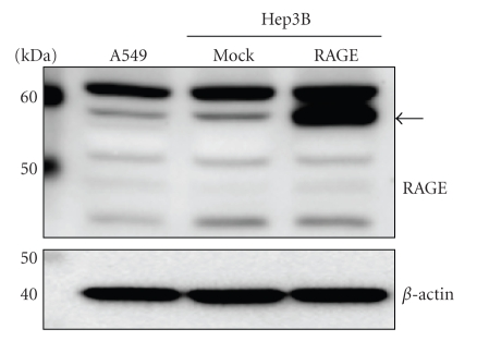 RAGE expression by Western blot analysis. Cell lysates (30  μ g of proteins/lane) were loaded onto a 10% polyacrylamide gel. Size markers (kDa) are shown on the left. Equal protein loading was estimated using anti- β -actin antibody. The arrow indicates full-length RAGE.