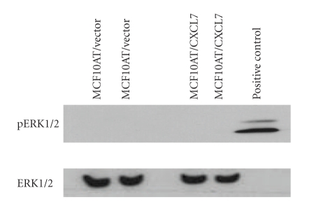 ERK1/2 mitogen-activated protein kinase is not active in CXCL7 stable transfected MCF10AT cells. Briefly, the cells were harvested in PBS, counted and lysed in the RIPA buffer with protease inhibitor cocktail. Protein concentration was determined for all samples using the Bio-Rad protein assay. The equal-volume samples (50 μ g) were separated by SDS-PAGE on a 10% polyacrylamide gel and transferred onto nitrocellulose membrane. Immunodetection was performed using pERK1/2 and ERK1/2, then developed by ECL. Stable CXCL7 transfected MCF10AT cells did not induce ERK1/2 phosphorylation compared to the vector transfected control cells. Furthermore, the expression of ERK1/2 was the same in stable CXCL7 transfected MCF10AT cells compared to vector controls.