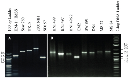 Ser-rich domains of EhJacob2 are polymorphic. Amplification products were generated using PCR primers flanking the Ser-rich region between the second and third chitin-binding domains of Jacob2. A. Jacob2 PCR products from axenized Eh isolates (HM-1:IMSS, HK-9, 200:NIH, and SD157) and Ed isolate (SAW760) have distinct mobilities on agarose gels. B. Jacob2 PCR products from clinical Eh isolates also have distinct mobilities.