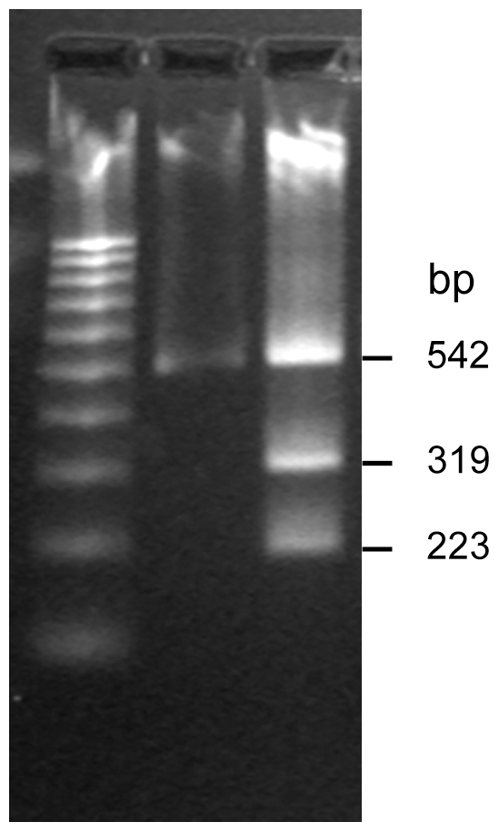 The restriction enzyme analysis on a predicted multiple infection O. tsutsugamushi strain. The DNA pattern on O. tsutsugamushi strain no. 37 undigested PCR product (1) and products after digestion with Dde I enzyme (2). M represents a 100 bp-DNA ladder marker.