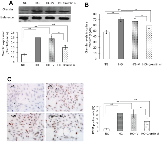 Cell proliferation in human mesangial cells cultured under high glucose conditions. Human mesangial cells were cultured in RPMI 1640 containing normal glucose (100 mg/dl D-glucose; NG) and high glucose (300 mg/dl D-glucose; HG). Cells under HG conditions were transfected with pBAsi mU6 Neo control plasmid (HG+V) or pBAsi mU6 Neo gremlin siRNA plasmid (HG+gremlin si) 12 hours before the glucose stimulation. Cell proliferation was examined by PCNA staining 12 hours after glucose stimulation. Gremlin expression is examined in human mesangial cells by Western blot ( A ); the secreted Gremlin in culture medium is observed by ELISA ( B ). The HG stimulated Gremlin expression in human mesangial cells is successfully inhibited by the transfection of pBAsi mU6 Neo gremlin siRNA plasmid. ( C ) High glucose-induced cell proliferation is inhibited in the HG+gremlin si group. (* p